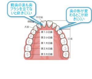 歯の並びのイラスト