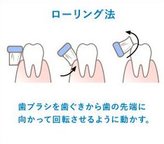 歯磨き ローリング法